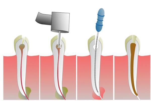 Endodoncija